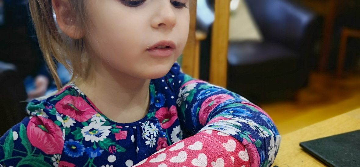 Activities for a child with a broken arm